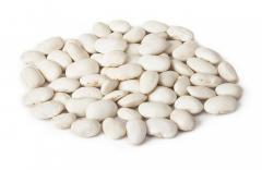 궤도의 다양 한 콩