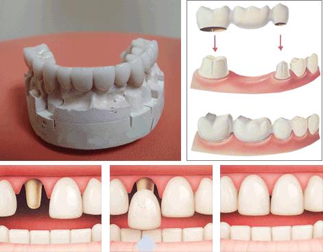 Нет одного зуба как сделать протезирование