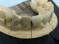 Услуги зуботехнической лаборатории
