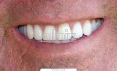 Протезирование зубов бюгельное