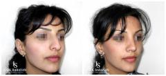 Пластическая хирургия носа